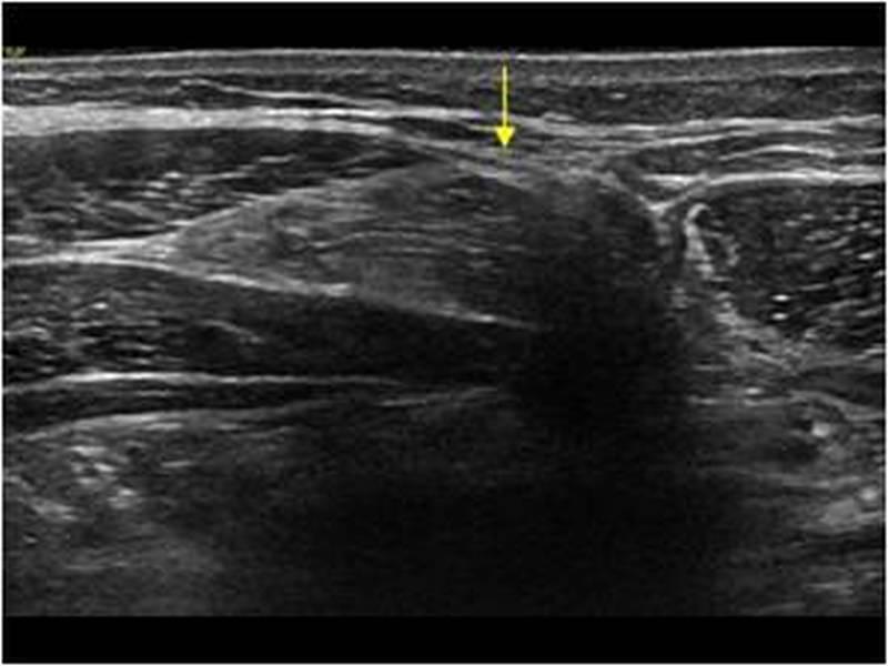 USG tkanek miękkich-powłok